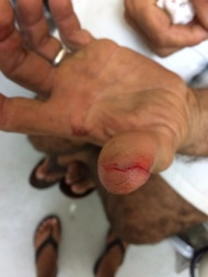 A nice slice through the finger.